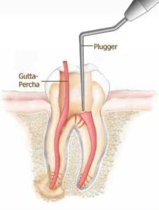 Un fouloir est utilisé pour introduire la gutta-percha afin de prévenir les infections pendant le traitement, Clinique Dentaire Dre. Manta, photo