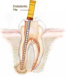 Retrait du tissu infecté et enflammé de la dent par le canal, Clinique Dentaire Dre. Manta, photo