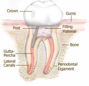 Root canal crown